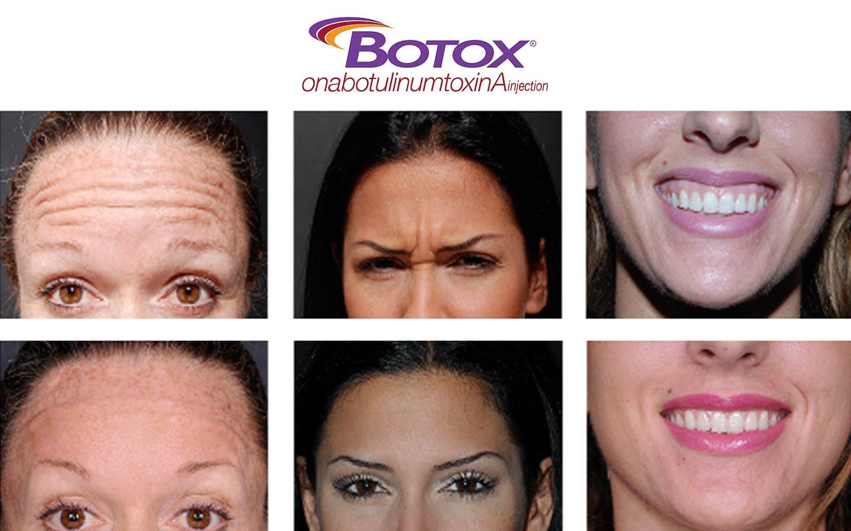 Botox photos