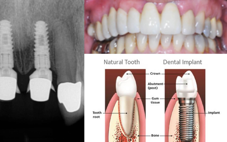 photo of dental implants
