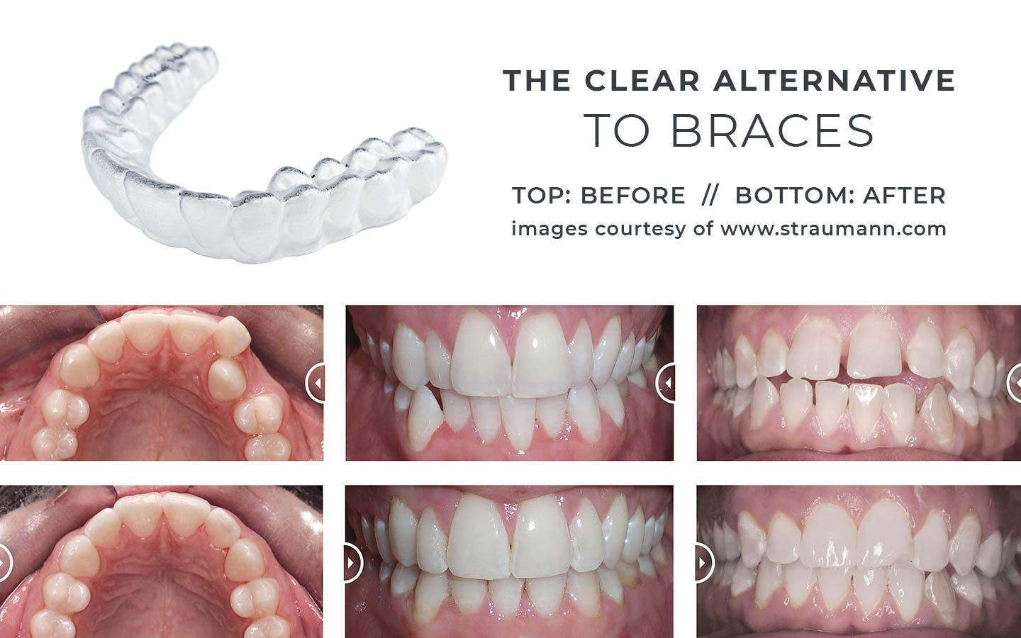 The clear alternative to braces, photos of clear aligners