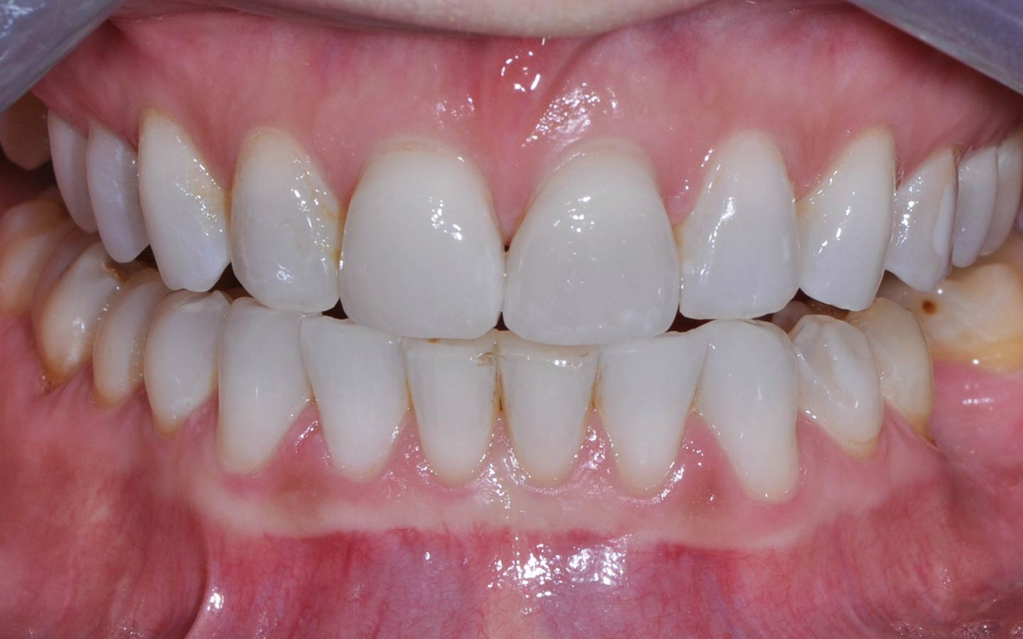 Same Day Crowns: After