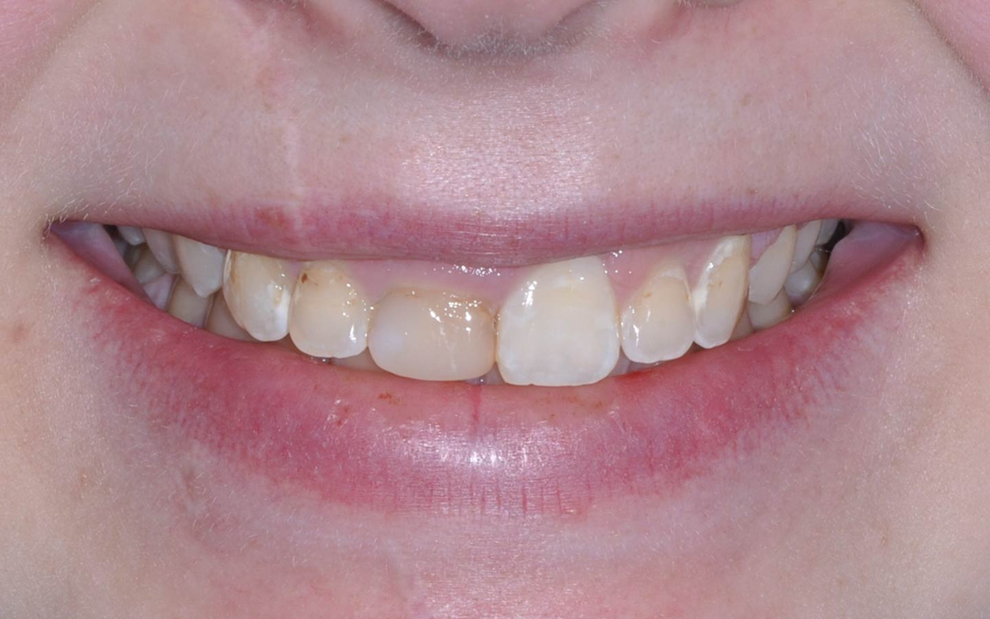 Same Day Crowns: Before